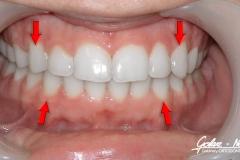Agnieszka_Golarz_Nosek-Leczenie-ortodontyczne-006