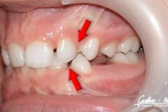 Agnieszka_Golarz_Nosek-Leczenie-ortodontyczne-003