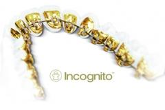 001 aparat_incognito
