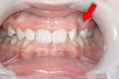 --- Agnieszka Golarz Nosek-leczenie ortodontyczne