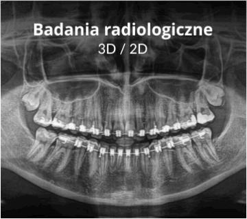 Ortodontyczne badania radiologiczna - Ortodoncja Kraków