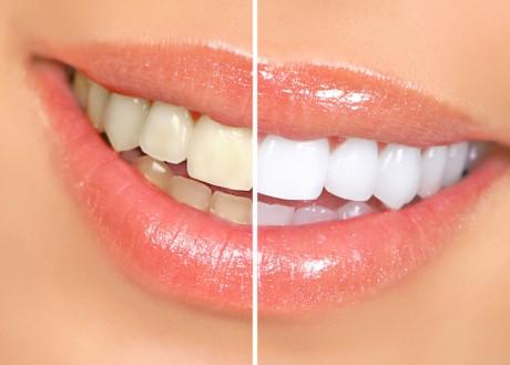 Wybielanie zębów - usługi gabinetu Golarz Nosek