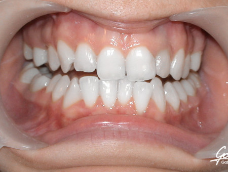 Leczenie ortodontyczne