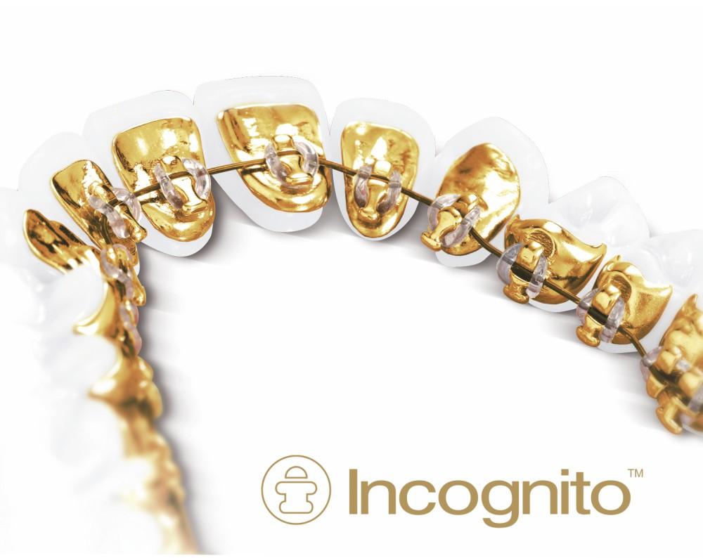Aparaty ortodontyczne Incognito - oferta dla wymagających